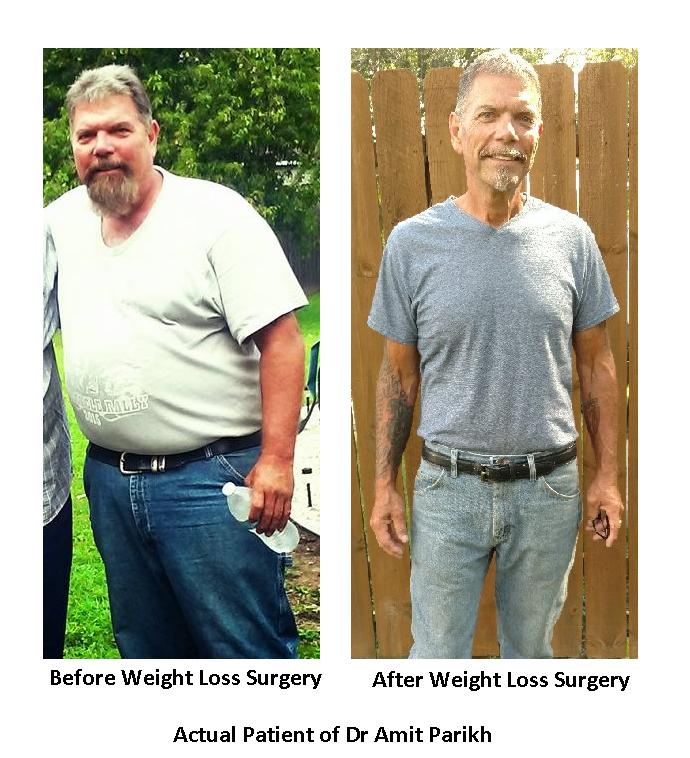 Surgeons Of Northern Illinois Weight Loss Surgery Gurnee
